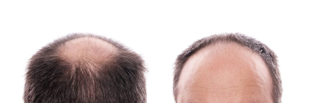 The Different Types of Hair Transplants